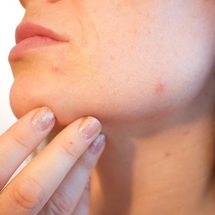 Facial Steam Treatment for Acne