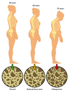 Essential oils for Osteoporosis