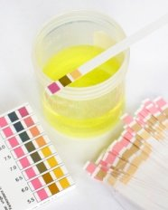 urine pH strips